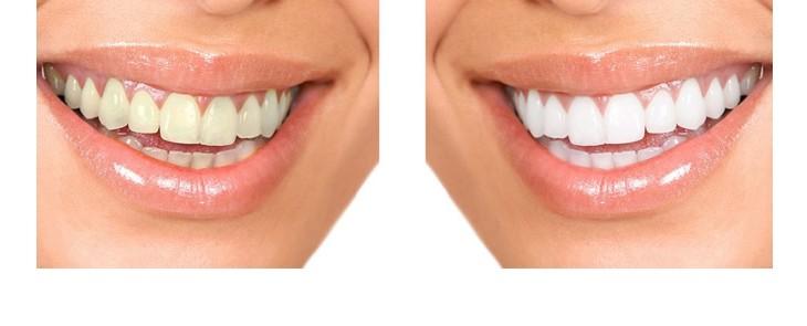 FUN but REAL: Dinții albi sunt mai frumoși decât cei gri deschis - același principiu se aplică blocurilor term